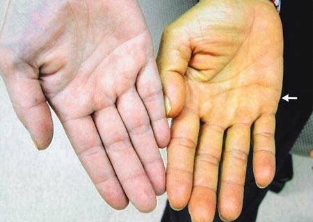 Vàng da, vàng mắt có phải bệnh viêm gan?