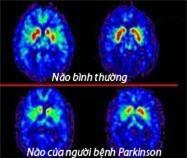 Parkinson Bệnh của người cao tuổi 2