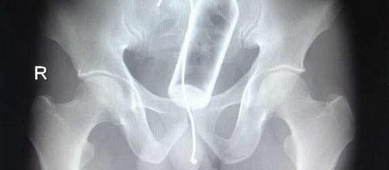 X-quang và nguy cơ ung thư