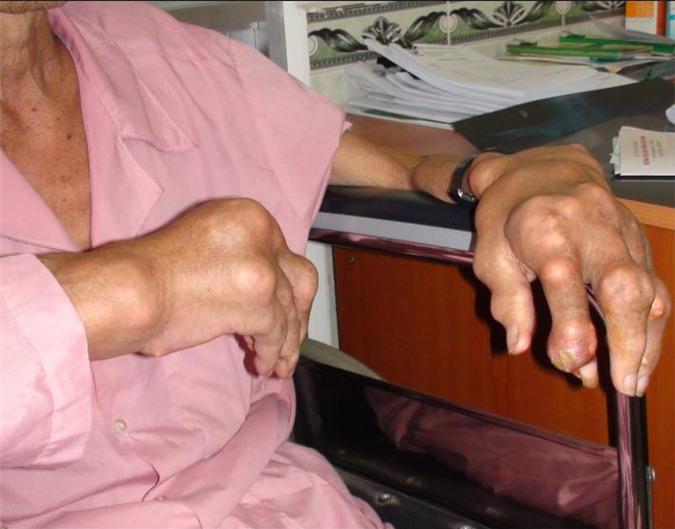 Lắng đọng tinh thể urat ở bệnh nhân gút  1