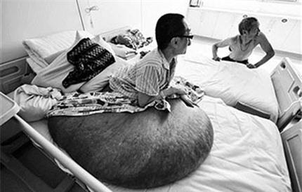 Liệt giường vì khối u khổng lồ, nặng 100kg trên người 1
