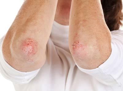 Dùng thuốc tăng huyết áp lâu: Tăng nguy cơ vảy nến