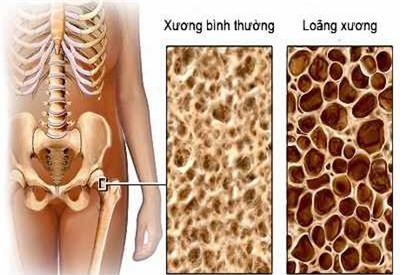 Đối phó với chứng đau nhức xương khớp