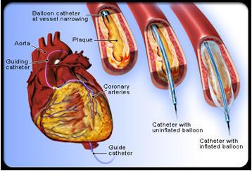 Sau khi đặt stent mạch vành có phải dùng thuốc không?