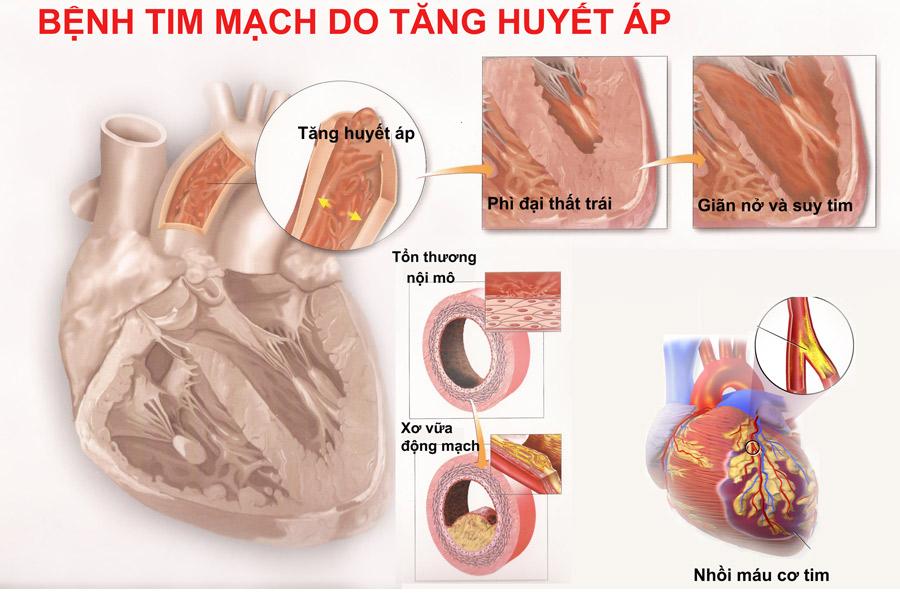 Ăn gì để phòng tăng huyết áp? - Ảnh 3
