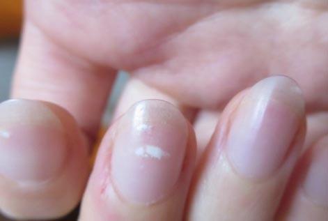Móng tay có đốm trắng là bệnh gì?
