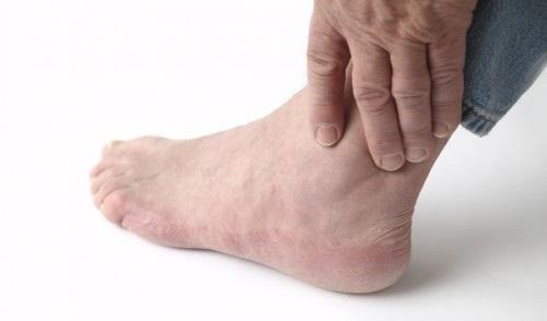 6 nguyên tắc phòng loét bàn chân cho người bệnh đái tháo đường - Ảnh 1