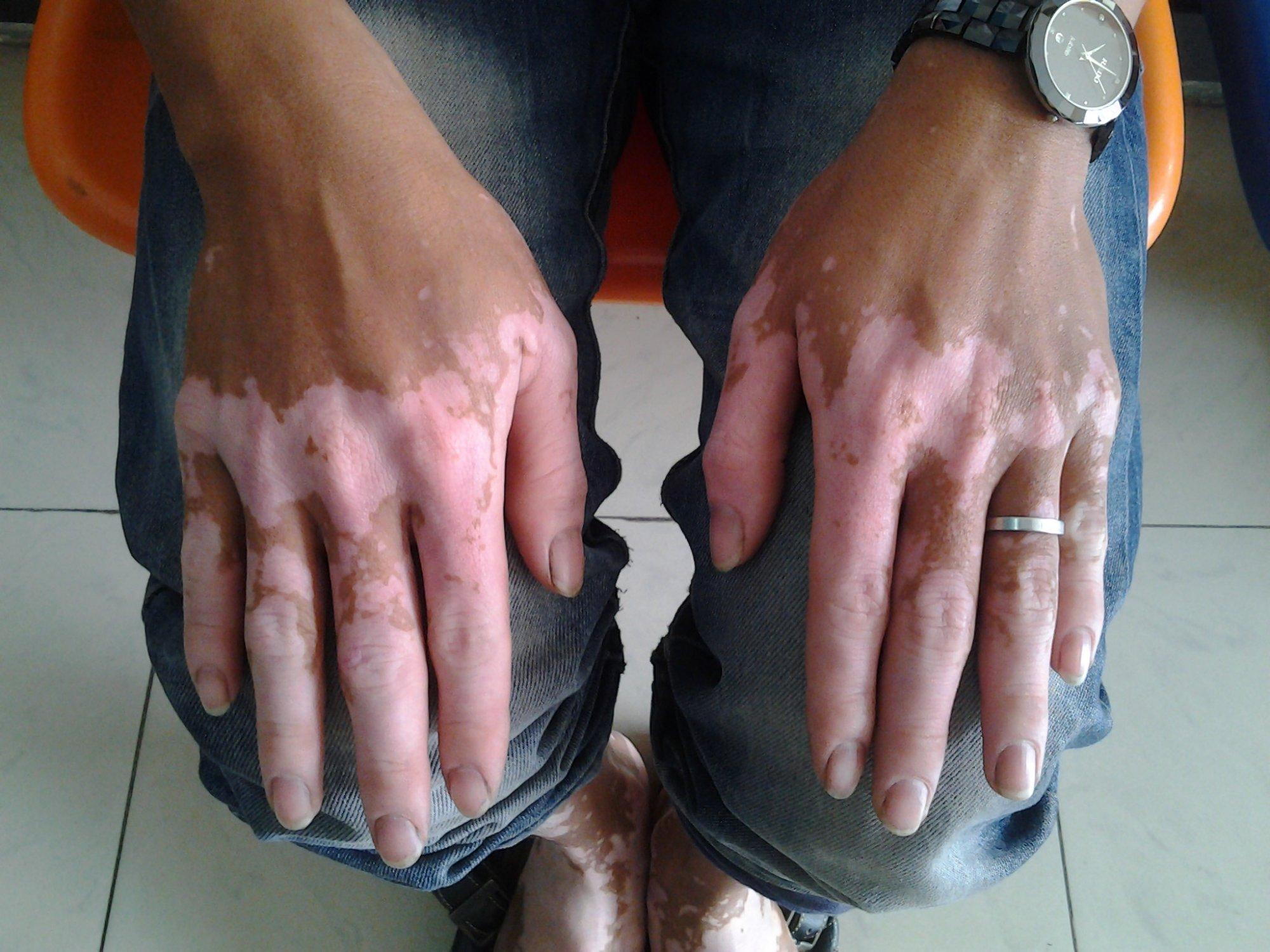 Kết quả hình ảnh cho bệnh bạch biến