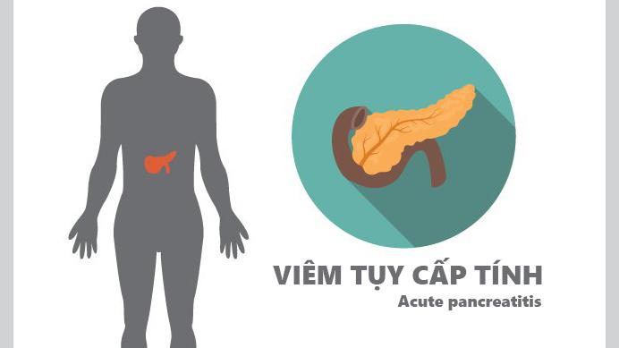 Đau bụng trên có thể là triệu chứng viêm tụy cấp tính