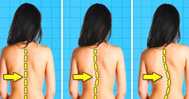 Cong vẹo cột sống phải điều trị thế nào?