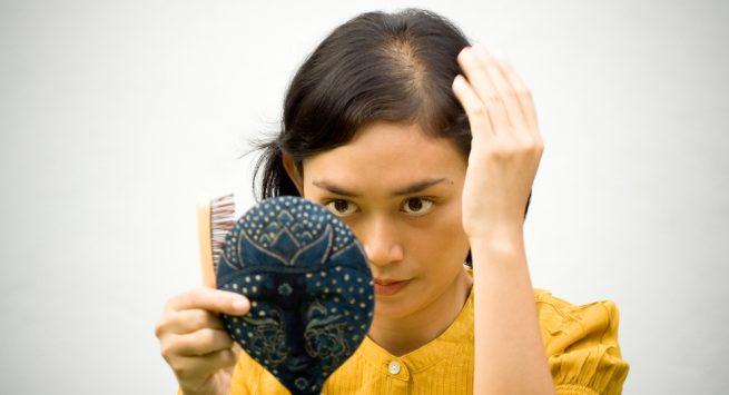 Những loại tinh dầu giúp điều trị chứng hói đầu