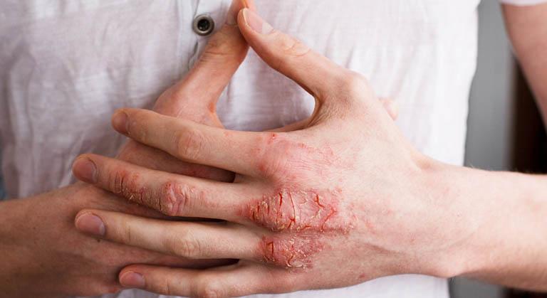 Cách giảm eczema trên bàn tay - Ảnh 1