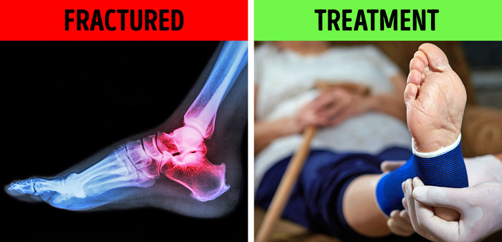 Nguyên nhân nào khiến bạn bị gót chân đau vào buổi sáng?  - Ảnh 1