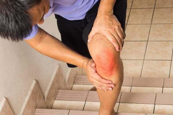 6 dấu hiệu cảnh báo bạn bị viêm khớp đầu gối - Ảnh 5
