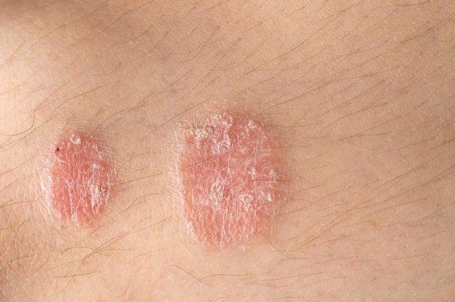 Xăm hình có an toàn với người mắc bệnh vẩy nến?  - Ảnh 1