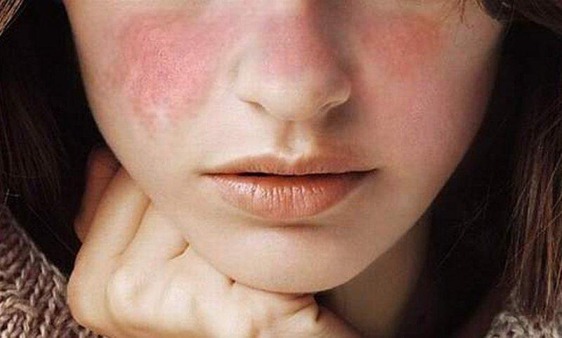 Phụ nữ bị lupus nên làm gì khi mang thai để giữ sức khỏe? - Ảnh 5